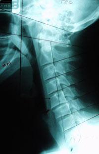 Chiropractic Tacoma WA Simmons Chiropractic Clinic X Ray